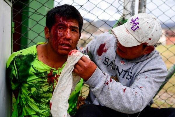 Así quedó un partidario de Evo Morales tras un choque con la policía. AFP