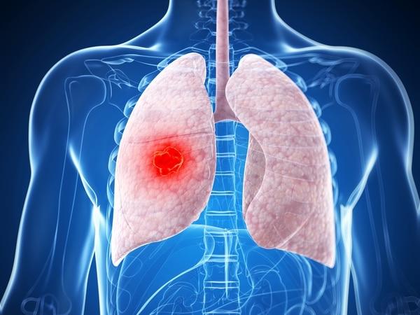 Después de los 35 años los pulmones de todas las personas empiezan a perder 35 mililitros al año.