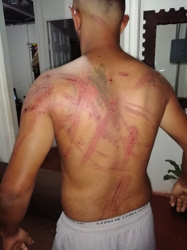 Campos fue golpeado hasta el punto de que le apagaron las luces. Foto suministrada por Edgar Chinchilla.