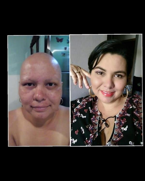 Antes de la enfermedad y durante la quimio. Foto: Cortesía