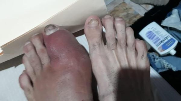 Así se llegó a ver el pie de Dayana cuando estuvo en los peores momentos.