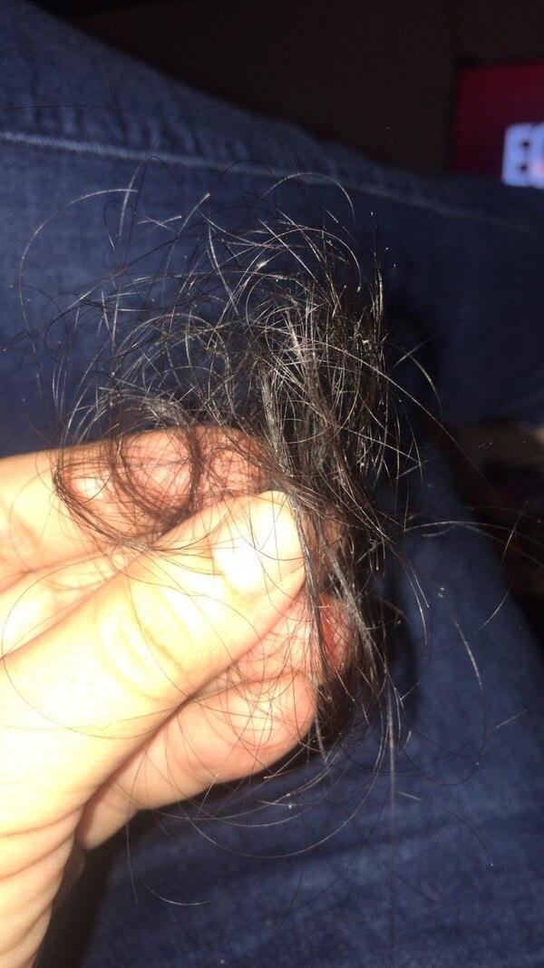 Patricia Coto sufre con la caída de cabello.