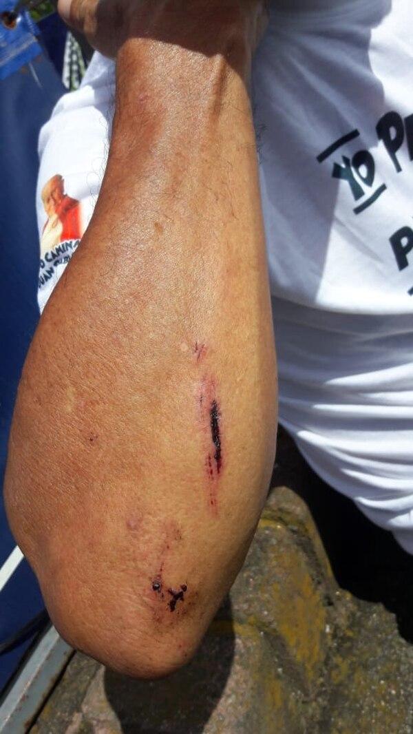 Estos raspones se los hizo cuando cayó en una zanja evitando que lo atropellara un carro. Foto: Cortesía