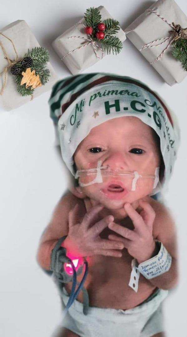 Luciana tiene un mes de nacida y está fortaleciéndose para poder ir a casa. Foto: CCSS.
