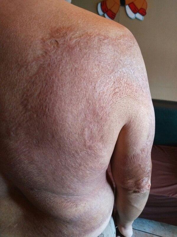 Con el paso de los años las cicatrices de su espalda se han ido borrando, así como el trauma por lo vivido ese día. Foto Keyna Calderón