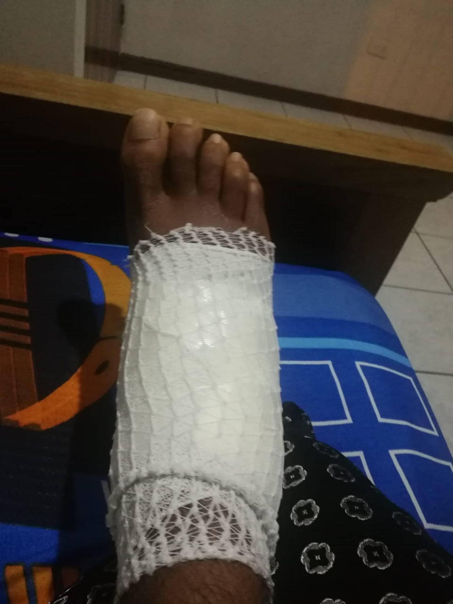 """Alexánder Loría: """"Por un simple raspón me entró una bacteria y casi me tienen que amputar un pie"""""""