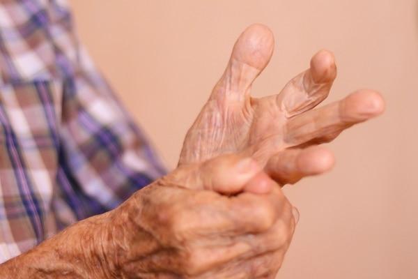 Solo una cicatriz en su dedo es la secuela de la guerra. Fotografía: Lilliam Arce.